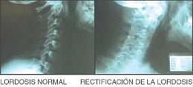 El Esguince Cervical es una Lesión Grave?