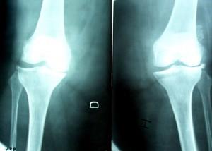 artrosis-rodilla-300x214
