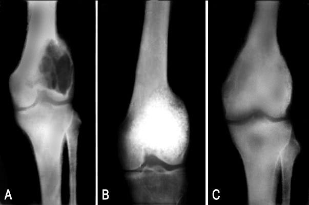 Radiografía cáncer en huesos