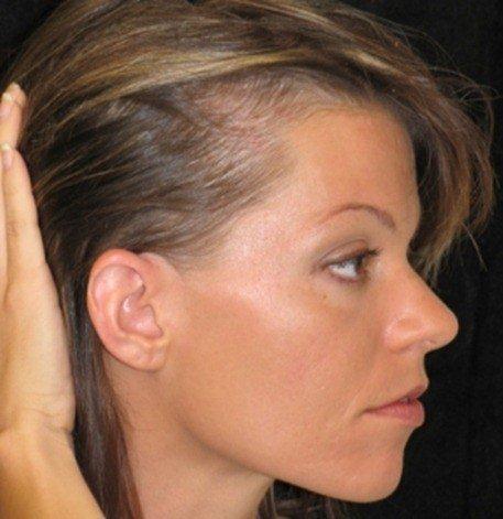 alopecia-95_thumb1